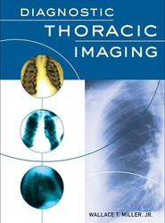 Diagnostic Thoracic Imaging