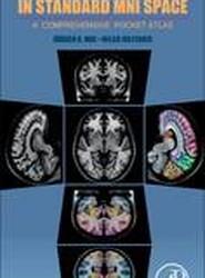Human Brain in Standard Mni Space