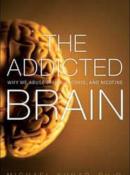 Addicted Brain