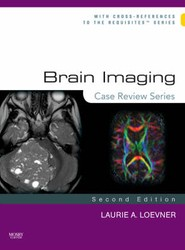 Brain Imaging: Case Review Series