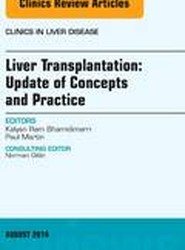 Liver Transplantation: Update of Concepts and Practice, An Issue of Clinics in Liver Disease