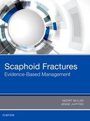 Scaphoid Fractures: Evidence-Based Management