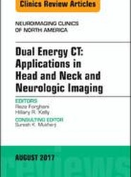 Dual Energy CT: Applications in Head and Neck and Neurologic Imaging, An Issue of Neuroimaging Clinics of North America