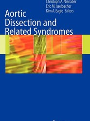 Aortic Dissection and Related Syndromes