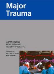 Churchill's Pocketbook of Major Trauma