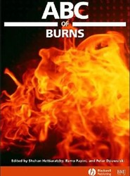 ABC of Burns