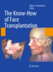 Know-How of Face Transplantation