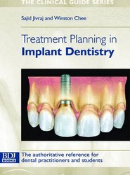 Treatment Planning in Implant Dentistry