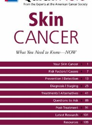 Quickfacts on Melanoma Skin Cancer