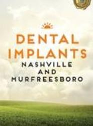 Dental Implants Nashville and Murfreesboro