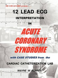 12 Lead ECG Interpretation in Acute Coronary Syndrome with Case Studies from the Cardiac Catheterization Lab
