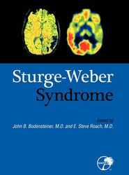 Sturge-Weber Syndrome