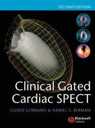 Clinical Gated Cardiac SPECT