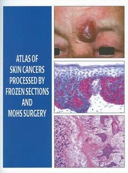 Atlas of Skin Cancers Processed by Frozen Sections and Mohs Surgery