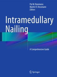 Intramedullary Nailing: A Comprehensive Guide