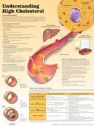 Understanding High Cholesterol Lam