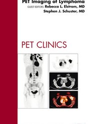 PET Imaging of Lymphoma, An Issue of PET Clinics