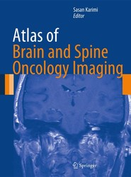 Atlas of Brain and Spine Oncology Imaging
