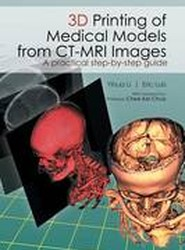 3D Printing of Medical Models from CT-MRI Images