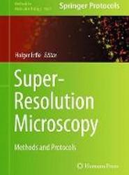Super-Resolution Microscopy 2017