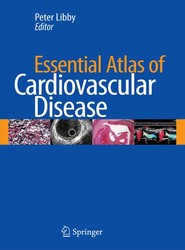 Essential Atlas of Cardiovascular Disease