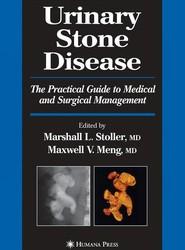 Urinary Stone Disease