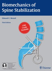 Biomechanics of Spine Stabilization