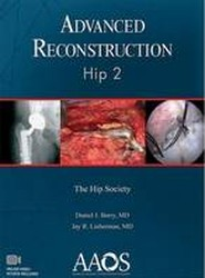 Advanced Reconstruction: Hip 2