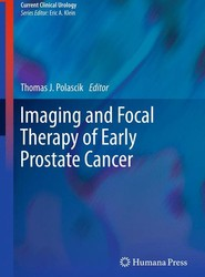 Imaging and Focal Therapy of Early Prostate Cancer