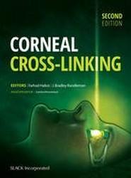 Corneal Cross Linking