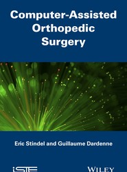 Computer Assisted Orthopedic Surgery