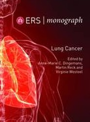 Lung Cancer: 68