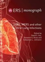 SARS, Mers and Other Viral Lung Infections