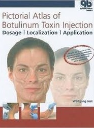 Pictorial Atlas of Botulinum Toxin Injection: Localization, Application