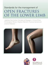 The Standards for the Management of Open Fractures of the Lower Limb
