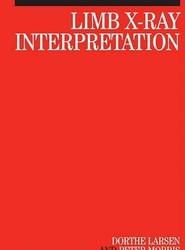 Limb X-Ray Interpretation