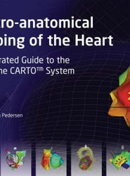 Electro-anatomical Mapping of the Heart