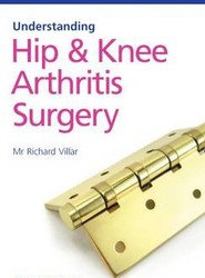 Understanding Hip and Knee Arthritis Surgery