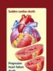 New Insights into Early Drug Treatment of Chronic Heart Failure
