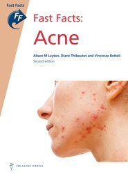 Fast Facts: Acne