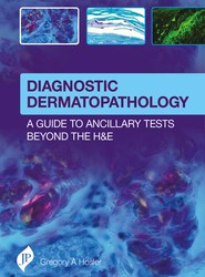 Diagnostic Dermatopathology: A Guide to Ancillary Tests Beyond the H&E