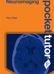 Pocket Tutor Neuroimaging