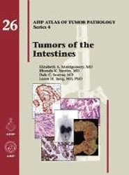 Tumors of the Intestines