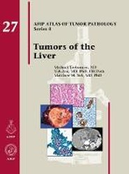 Tumors of the Liver