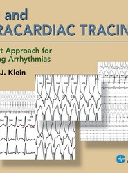 ECG and Intracardiac Tracings