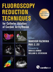 Fluoroscopy Reduction Techniques for Catheter Ablation of Cardiac Arrhythmias