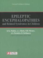 Epileptic Encephalopathies