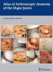 Atlas of Arthroscopic Anatomy of Major Joints