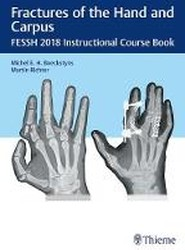 Fractures of the Hand and Carpus: FESSH 2018 Instructional Course Book
