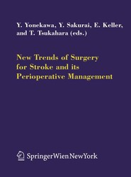 New Trends of Surgery for Cerebral Stroke and its Perioperative Management